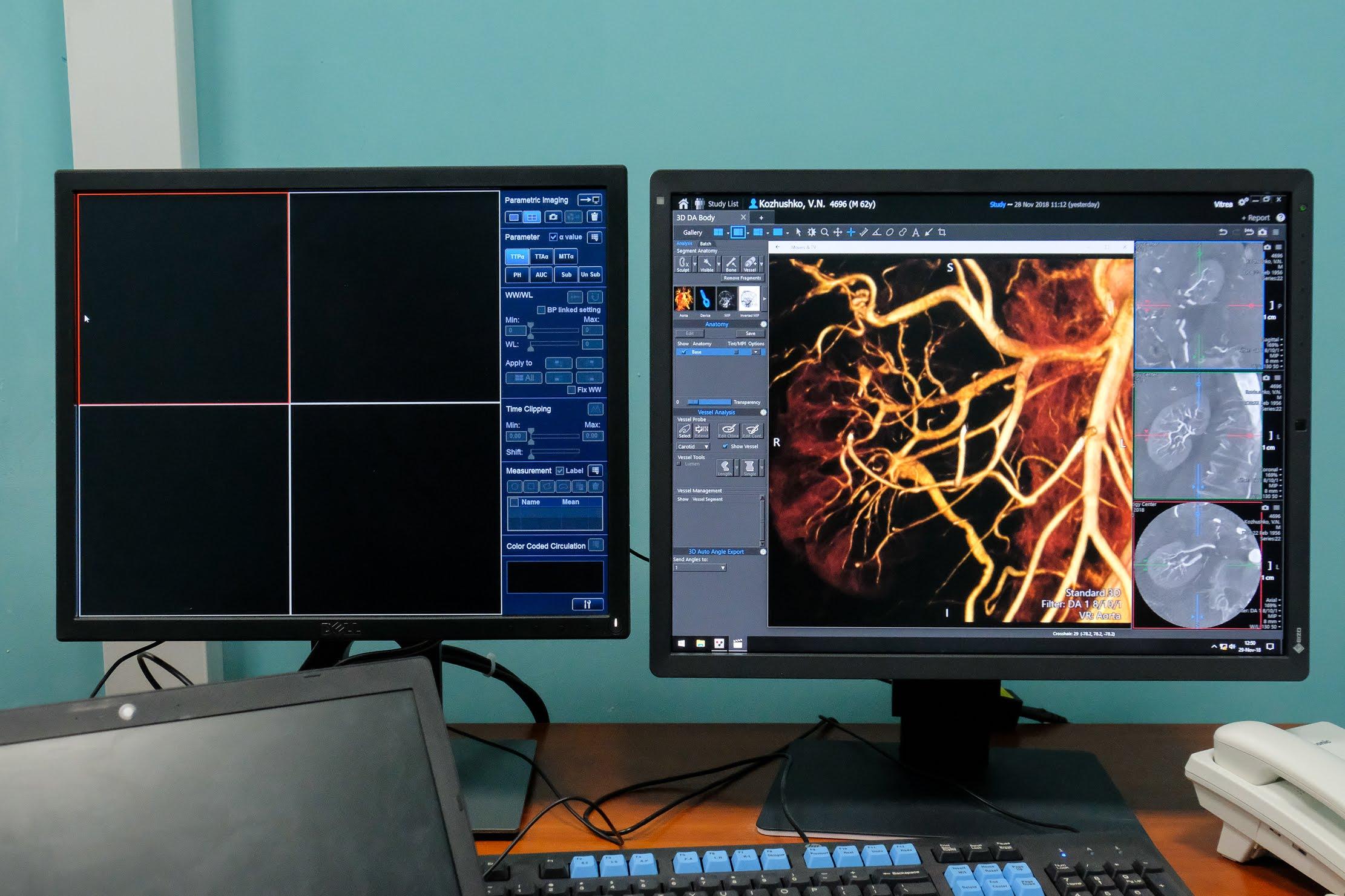 Ще одна з переваг – моделювання 3D зображення органів